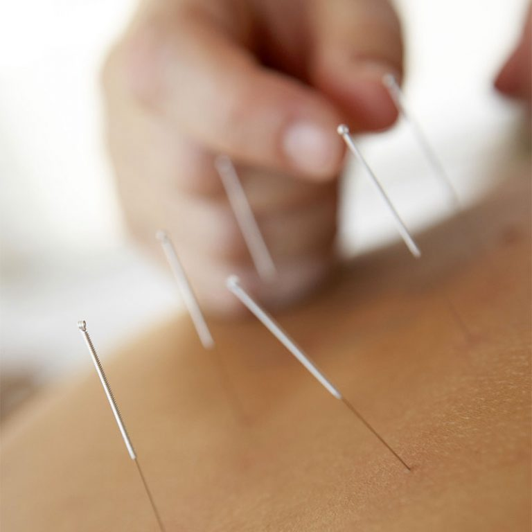 acupuncture at copthall health